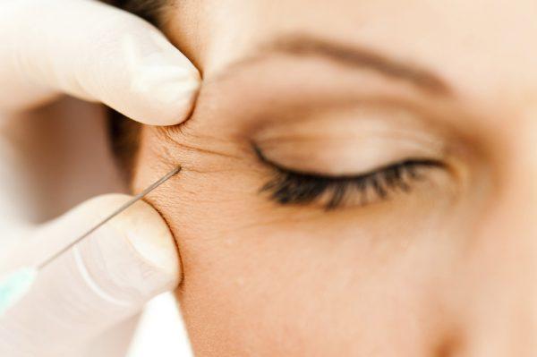 Jak dbać o skórę dojrzałą? Poznajemy rodzaje zmarszczek